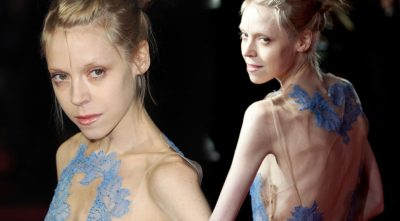 actress Antonia Campbell-Hughes anorexia